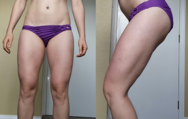 19.7.14 Legs